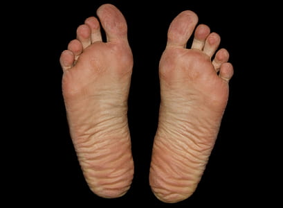 person's foot sole