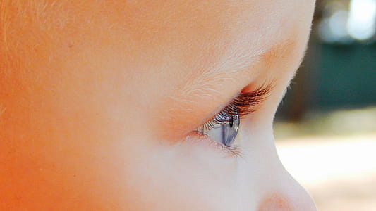 toddler's right eye