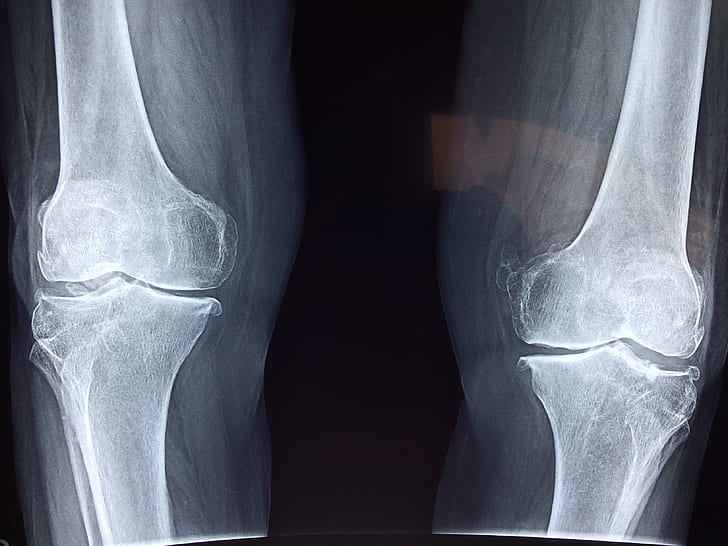 photo of human leg knees x-ray results