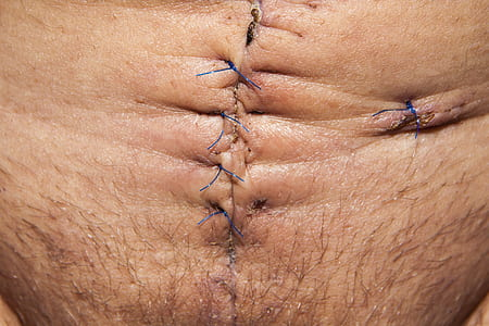 closeup of human's tummy with stitches